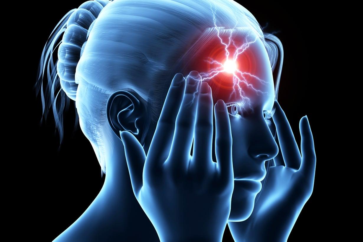 Jännityssärky hiipii ohimoille usein niskasta, sillä päätetyö kuormittaa sen lihaksia. Kuva: Shutterstock