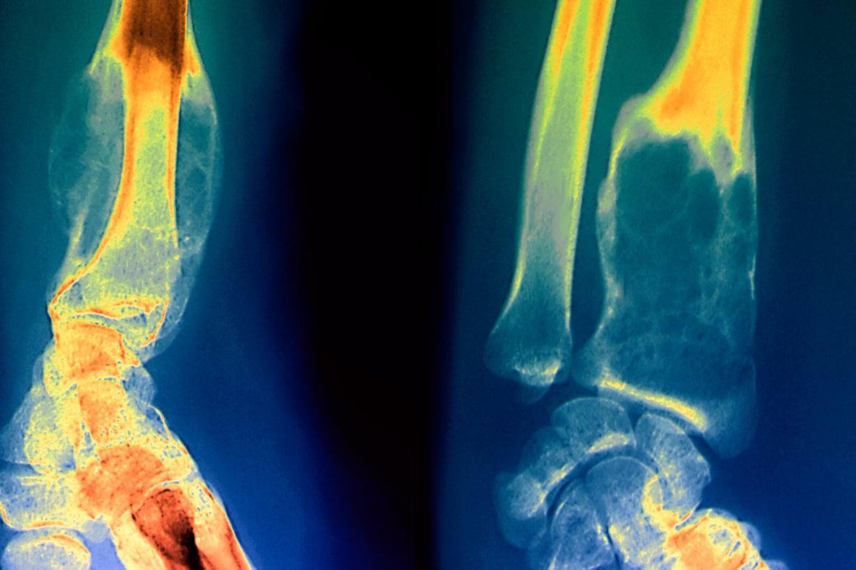 Luuksi muuttuva biolasi auttaa esimerkiksi syöpäpotilaita, joilta kasvain on tuhonnut luukudosta. Kuva: SPL/MVPhotos