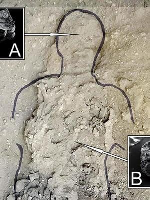 Pompeijissa kuolleen jäänteiden ääriviivat on tarkennettu. Lasittunut aivokudos on merkitty kirjaimella A ja selkäytimen osa kirjaimella B. Elektronimikroskoopin kuvissa koko on millimetrejä. Kuva on tutkimuksesta.