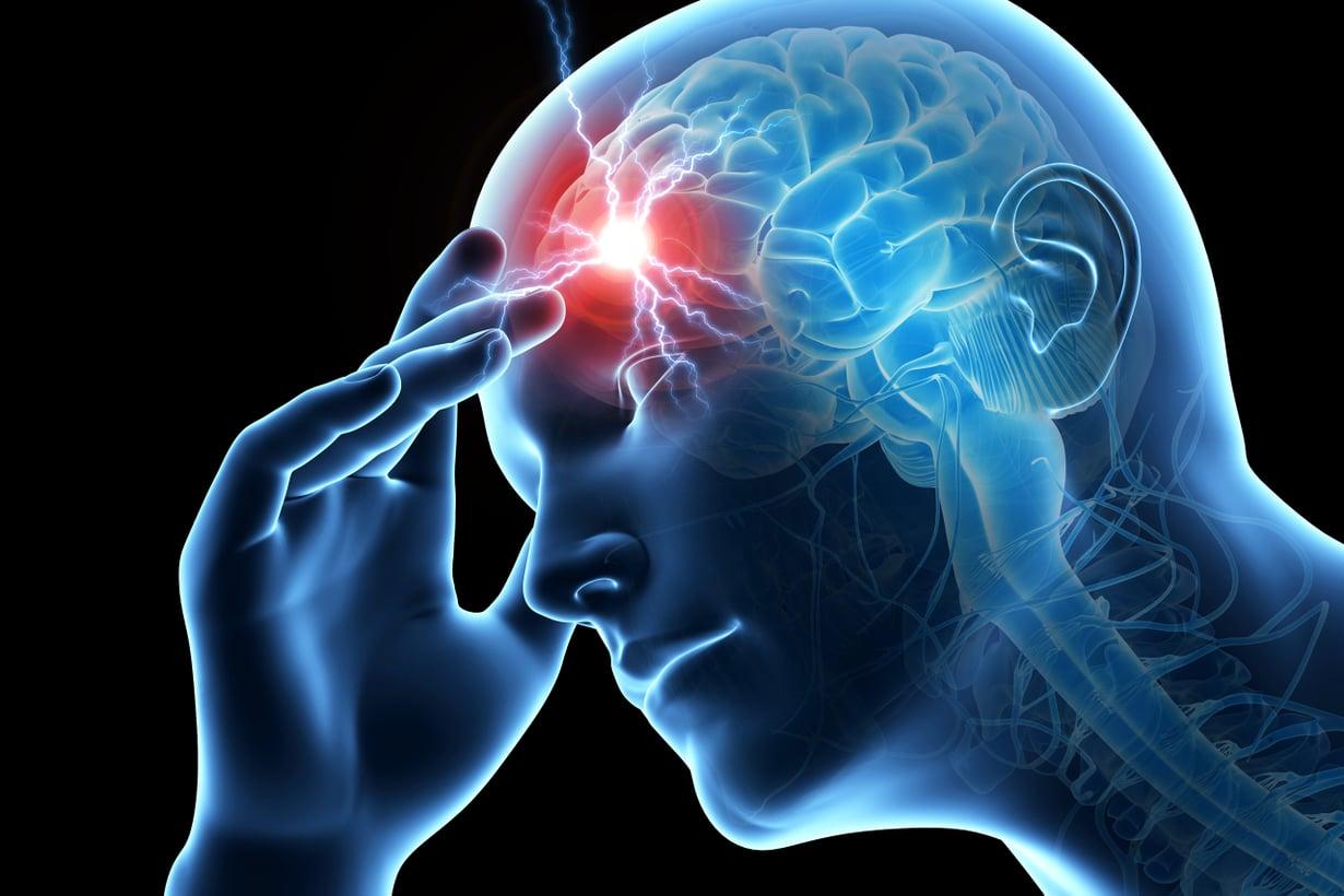 Rajuimmillaan aivorungosta lähtevä sähköhäiriö ärsyttää koko keskushermoston hälytystilaan. Kuva: Shutterstock