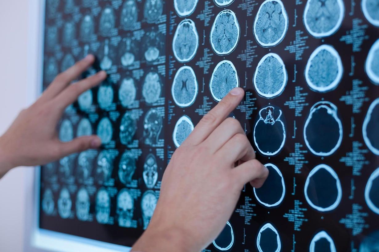 85-prosentin sääntö voi kuvata sitä, miten radiologi oppii tulkitsemaan tietokonekuvia ihmisen kudoksista. Kuva: Shutterstock
