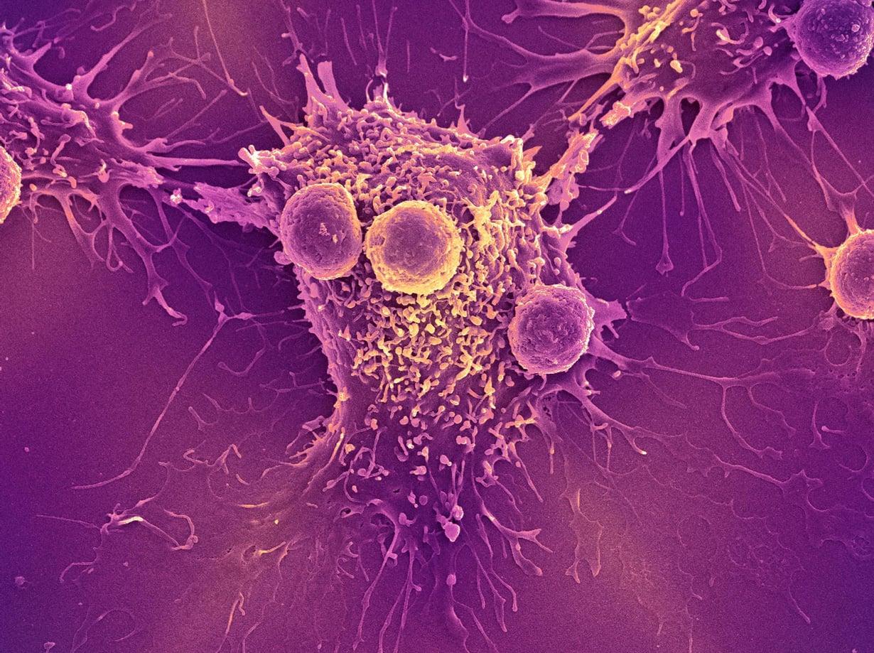 Elimistön puolustuksen T-solut näkyvät pyöreinä syöpäsolun ympärillä. Kuva: STEVE GSCHMEISSNER/SCIENCE PHOTO LIBRARY