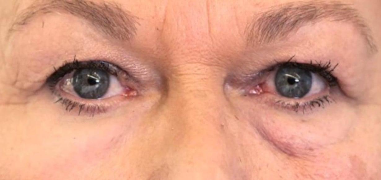 Polymeeri pingottaa silmäpussit. Kuva: Olivo Labs, LLC