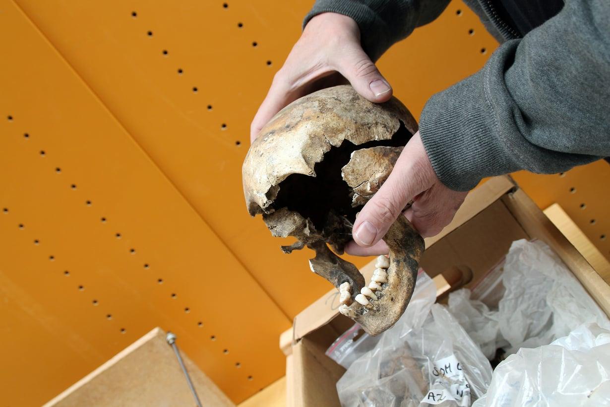 Tämä kallo kuului kuppaa sairastaneelle tytölle. Kuva: Birgitte Svennevig/SDU