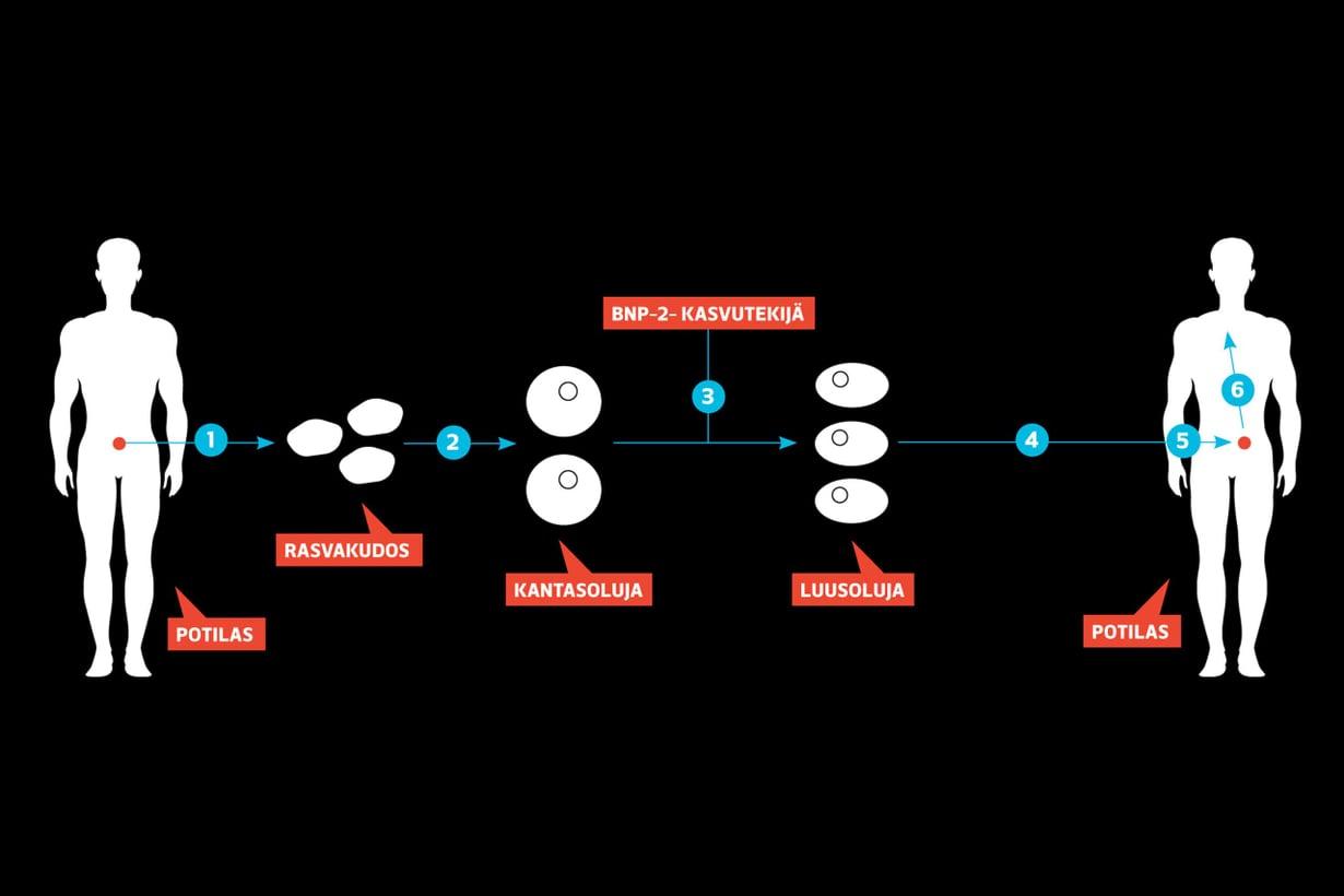 Tampereen yliopiston BioMediTechin tutkijat ovat kasvattaneet yli kahdellekymmenelle potilaalle  näiden omista mesenkymaalisista kantasoluista uusia pään ja kasvojen luita vaurioituneiden tilalle. Grafiikka Riku Koskelo/Tiede