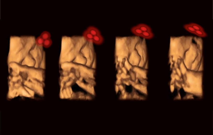 """Ultraäänikuvassa sikiö seuraa kohdun seinän läpi paistavaa valokuviota. Kuva: <span class=""""photographer"""">Kirsty Dunn & Vincent Reid</span>"""