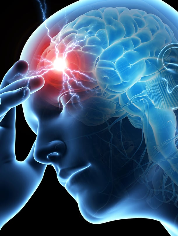 """Rajuimmillaan aivorungosta lähtevä sähköhäiriö ärsyttää koko keskushermoston hälytystilaan. Kuva: <span class=""""photographer"""">Shutterstock</span>"""