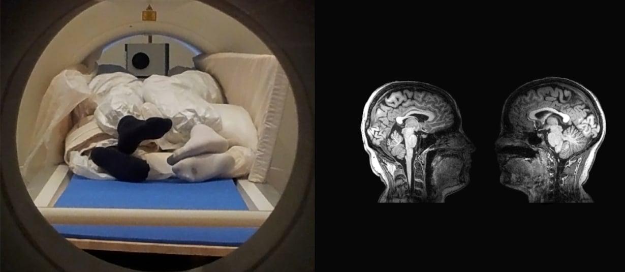 Pariskunta kosketteli toistensa kasvoja magneettikuvauslaitteessa. Kosketukset saattoi tunnistaa aivokuvissa oikealla. Kuva: Ville Renvall