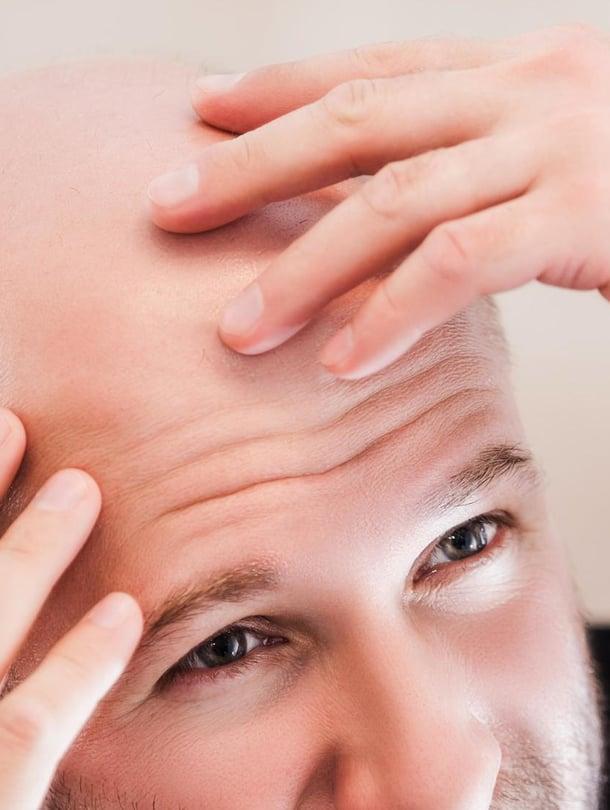 """Usealla miehellä hiukset alkavat harveta, kun ikää kertyy. Kuva: <span class=""""photographer"""">Shutterstock</span>"""