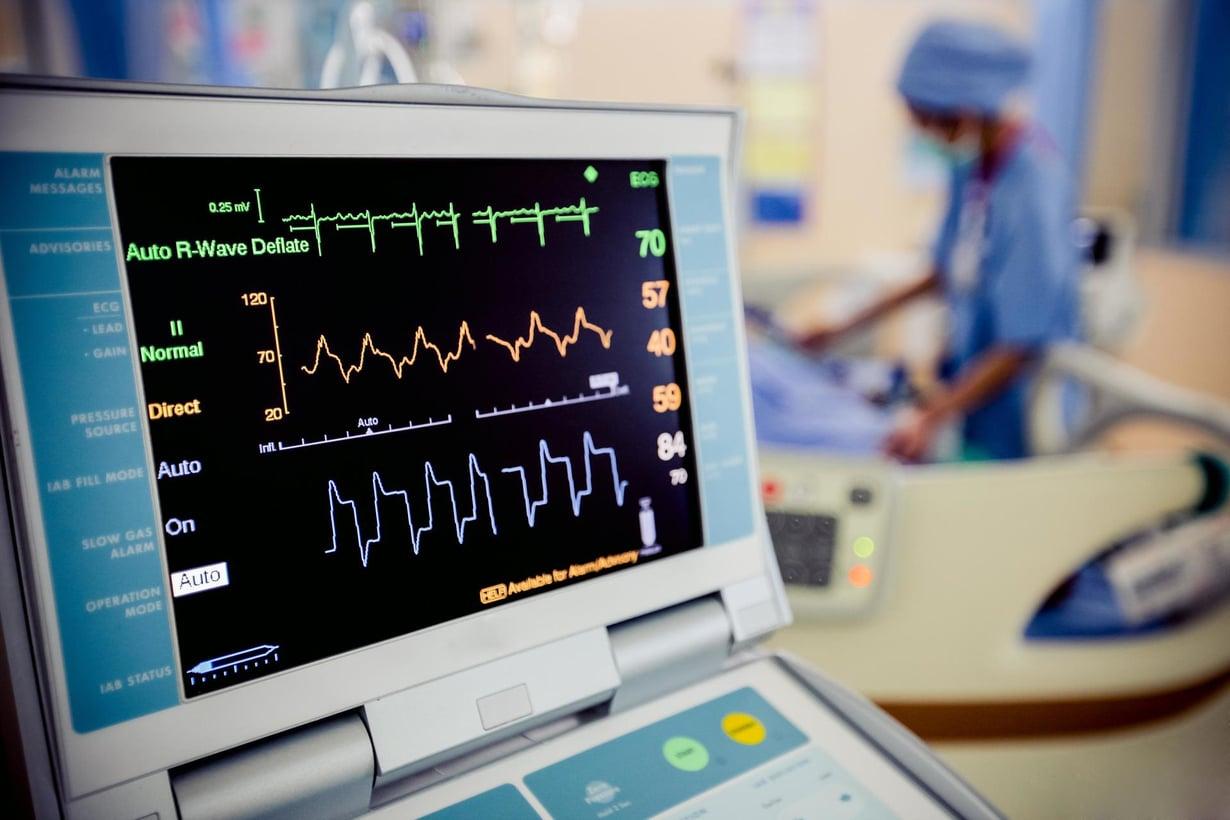 Sydänkäyrä kertoo sydämen tilasta. Kuva: Shutterstock