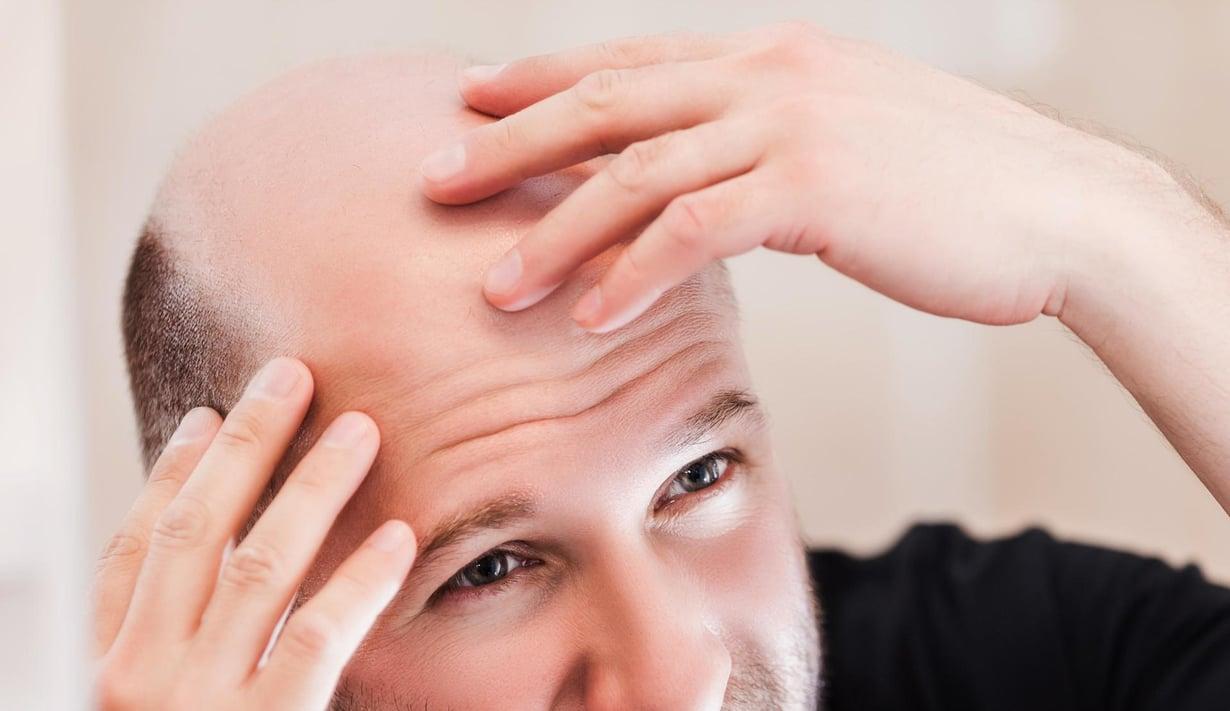 Usealla miehellä hiukset alkavat harveta, kun ikää kertyy. Kuva: Shutterstock