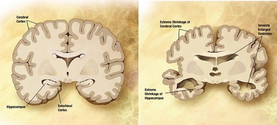 Vasemmalla terveet, oikealla Alzheimer-potilaan aivot.
