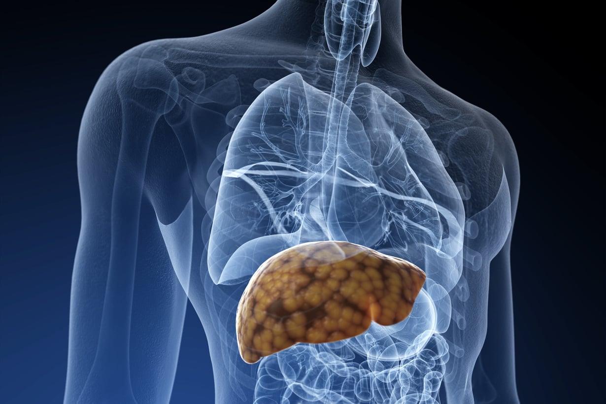 Maksasolut imuroivat rasvaa verenkierrosta ja tekevät sitä itse sokerista. Kuva: SPL/MVPhotos
