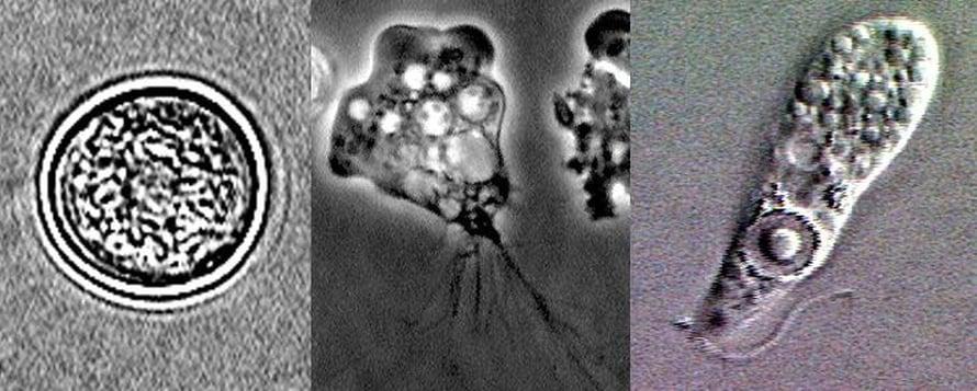 """Naegleria fowlerin erilaisia muotoja. Kuva: <span class=""""photographer"""">Yhdysvaltain tartuntatautivirasto</span>"""