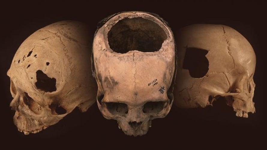 """Perusta on löydetty enemmän todisteita muinaisesta kallonporauksesta kuin kaikkialta muualta yhteensä. Kuva: <span class=""""photographer"""">University of Miami</span>"""