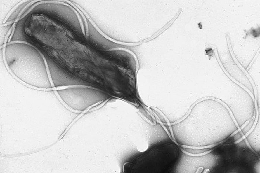Helikobakteeri voi aiheuttaa mahahaavan.