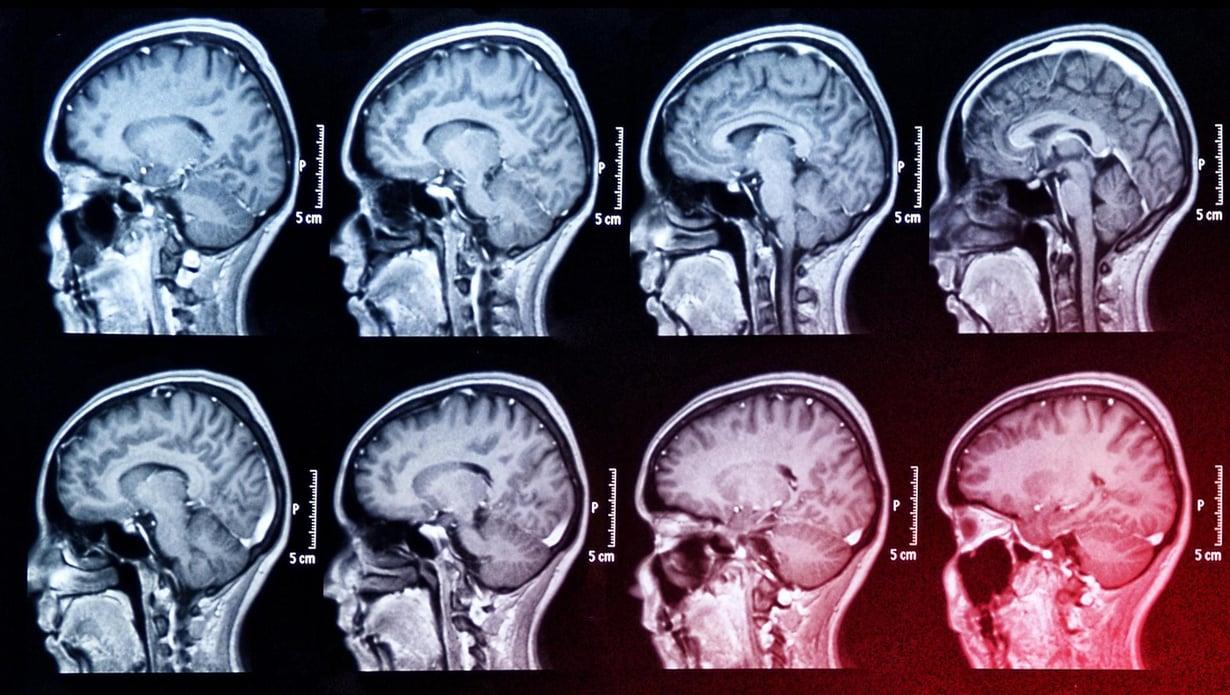 Creutzfeldt-Jakobin tauti on kuolemaan johtava aivorappeumasairaus. Kuva: Kimmo Taskinen