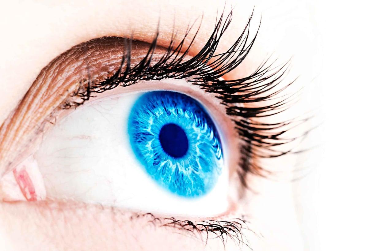 Sinisyys johtuu pigmentin niukkuudesta. Kuva: Shutterstock