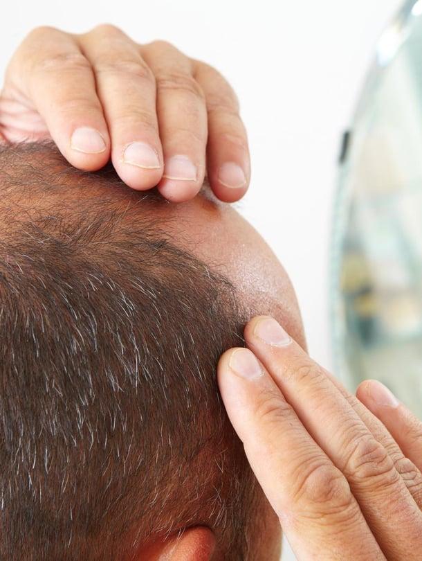 """Joitain hiusten lähtö huolestuttaa. Kuva: <span class=""""photographer"""">Shutterstock</span>"""
