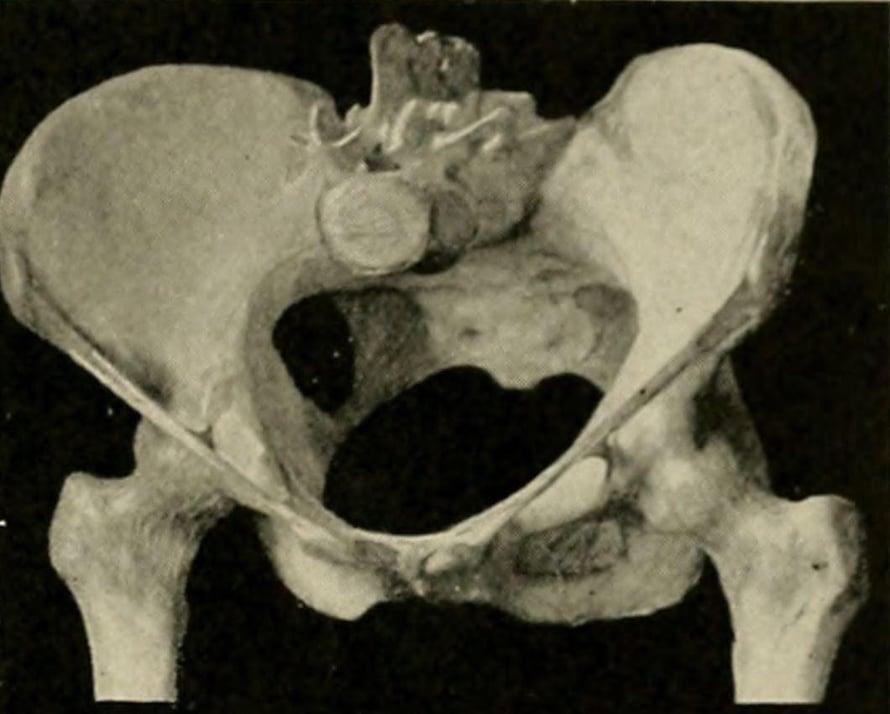 """Evoluutiossa ihmislapsen pää kasvoi ja pystyssä kävelevän naisen lantio kapeni. Kuva: <span class=""""photographer"""">The American text-book of obstetrics for practitioners and students (1903) / Wikimedia Commons</span>"""