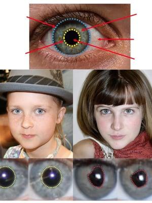 """Vasemmalla on aidon ihmisen kasvot. Oikealla tyttö on valehenkilö, sillä pupillit eivät ole pyöreät eivätkä myöskään symmetriset. Kuva: <span class=""""photographer"""">Hui Guo et al.</span>"""