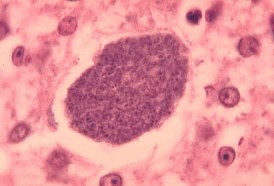 Malaria on tyypillinen tauti, jonka tartunnoissa on usein mukana monia erilaisia malariakantoja. Yhdysvaltain tartuntatautiviraston kuvassa malarialoisioita maksakudoksessa.
