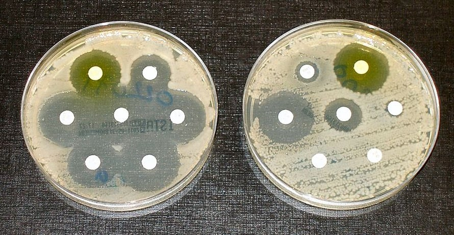 """Kaksi eri E. coli -kantaa, joista vasemmanpuolinen on herkkä kaikille antibiooteille ja oikeanpuolinen on resistenssi muutamille antibiooteille. Kuva: <span class=""""photographer"""">Graham Beards / Wikimedia Commons.</span>"""