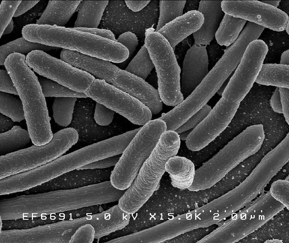 Escherichia coli -bakteeri elektronimikroskoopin kuvassa. Suolistossa majaansa pitävä kolibakteeri lienee tutkituin ja tunnetuin bakteeri. Kuva: Wikimedia Commons