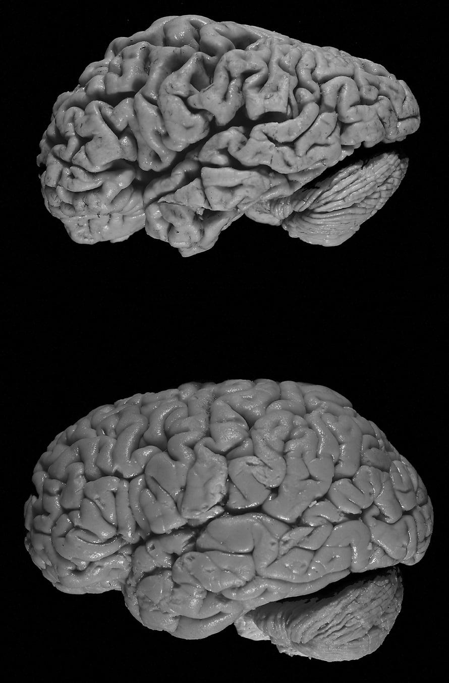 Alzheimerin tauti kutistaa aivoja.