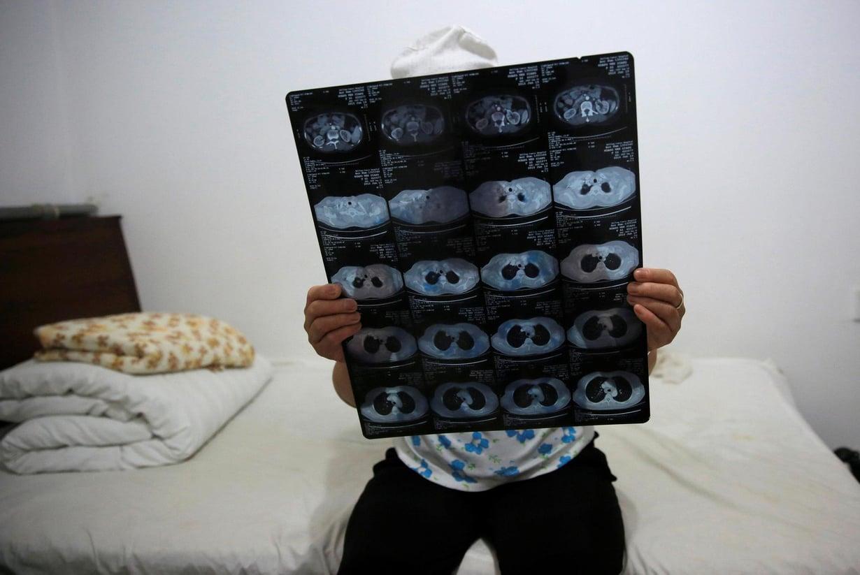 Kiinalainen syöpäpotilas tutkii röntgenkuvia sairaalassa Pekingissä. Kuva ei liity uutisen käsittelemään tutkimukseen. Kuva: KIM KYUNG-HOON / Reuters
