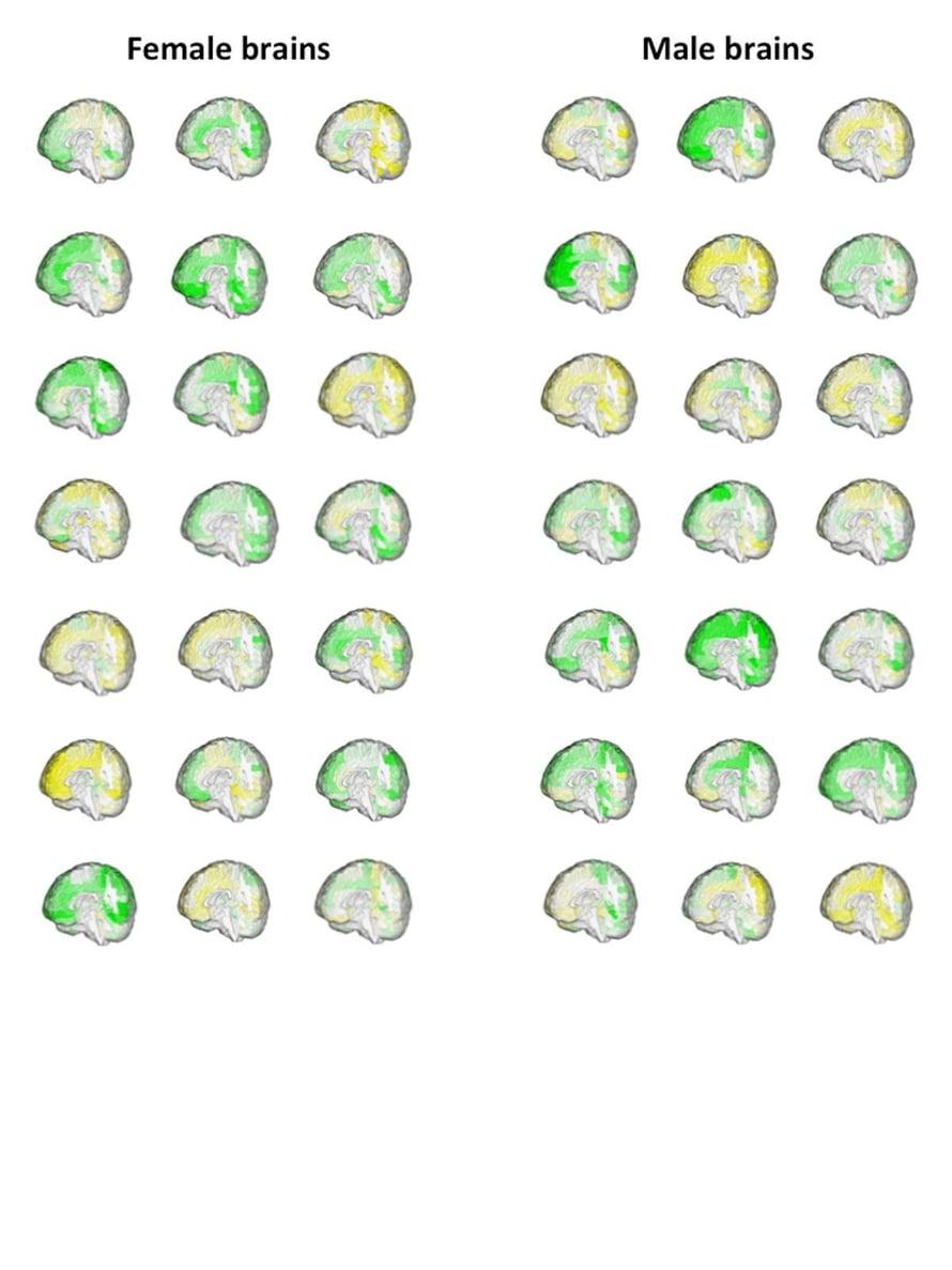 """Aivoalueiden tilavuus on yksilöllistä, kuten näistä aikuisten naisten ja miesten aivoista näkyy. Keltainen kuvaa pientä tilavuutta, vihreä suurta. Kuva: <span class=""""photographer"""">Zohar Berman & Daphna Joel</span>"""