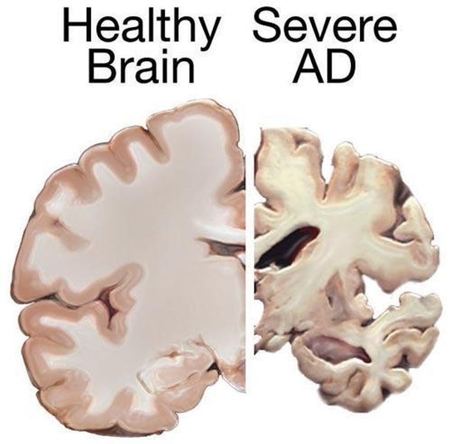 """Alzheimerin tauti kutistaa aivoja. Kuvassa vasemmalla on terveet aivot, oikealla vakavaa Alzheimerin tautia sairastavan aivot. Kuva: <span class=""""photographer"""">National Institutes of Health</span>"""