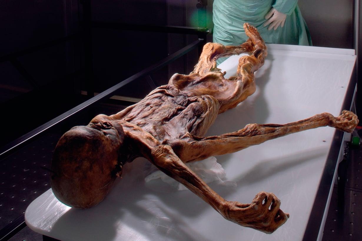Ötziä on voitu tutkia tarkasti, sillä hän jäätyi kuolinasentoonsa ja säilyi lähes vahingoittumattomana. Kuva: South Tyrol Museum of Archaeology