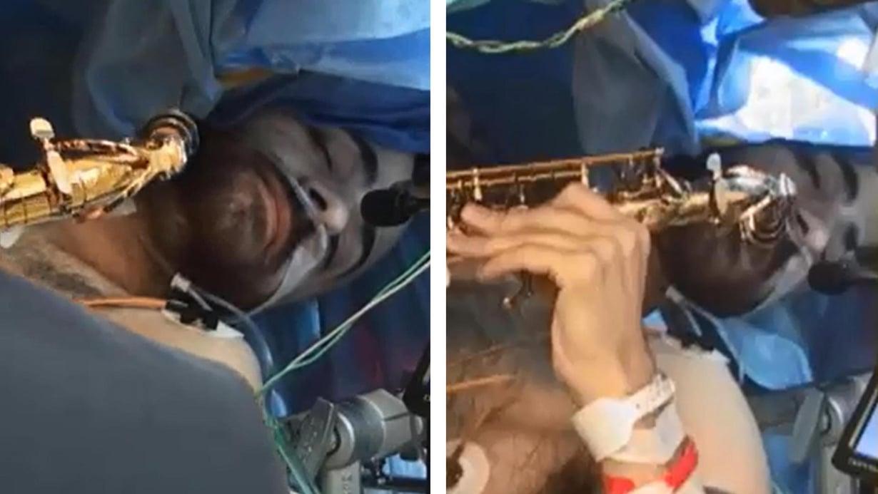 Videolla näkyy, miten Dan Fabbio muun muassa soittaa saksofonia leikkauspöydällä. Kuva: University of Rochester Medical Center
