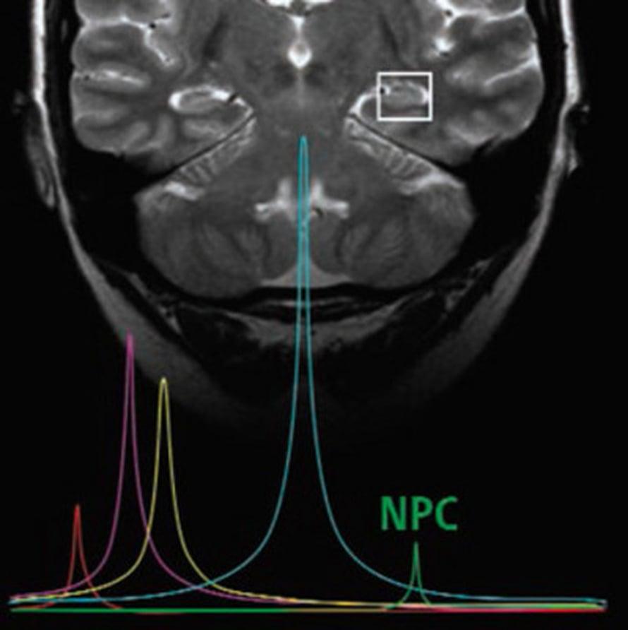 """Hermosolujen kantamuodot paljastuvat aivokuvassa merkkimolekyylin avulla. Signaali on vahvin laatikon alueella, hippokampuksessa.  Kuva: <span class=""""photographer"""">Amanda Sierra Saavedra</span>"""