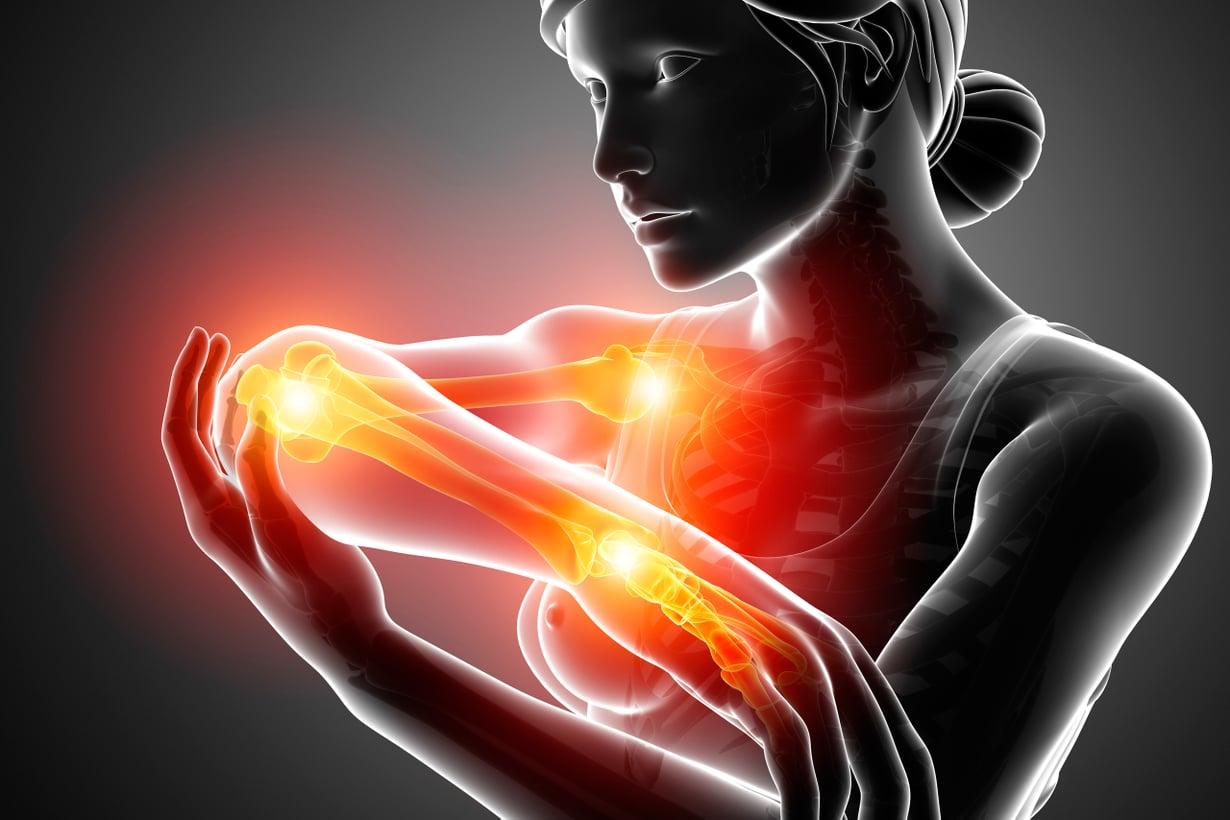Käsi varsineen kääntyy moneen suuntaan. Sitä liikutetaan jatkuvasti, joten sen nivelet ärtyvät erityisen herkästi. Kuva: iStock
