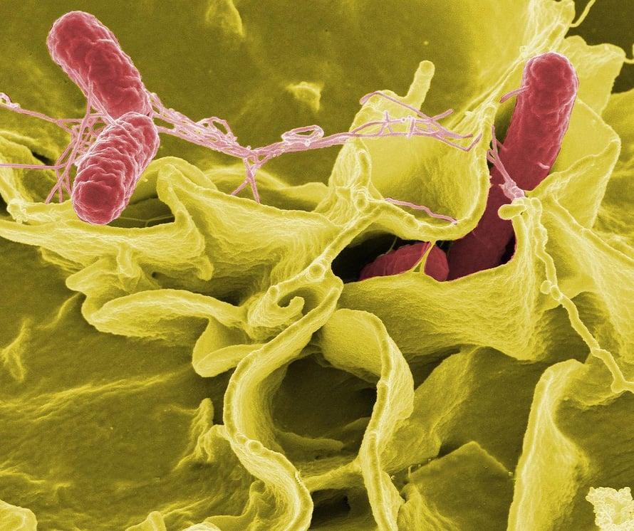 """Kuvassa punaiseksi värjätty Salmonella Typhimurium tunkeutuu ihmisen soluun. Kuva: <span class=""""photographer"""">NIAID</span>"""