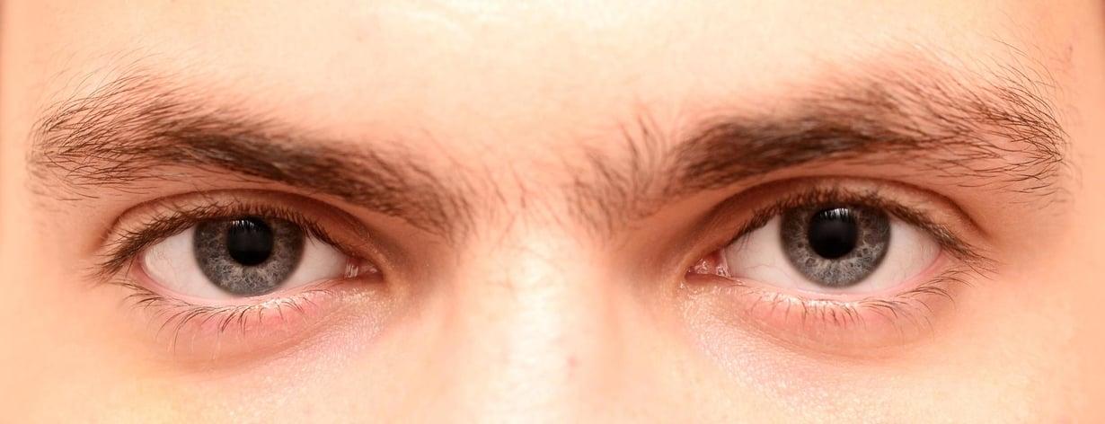 Kokeisiin osallistuvien silmät ovat normaalit, mutta heiltä puuttuu geeni, jonka ansiosta signaali silmistä saavuttaa aivot. Kuva ei ole tällaisesta potilaasta. Kuva: Shutterstock