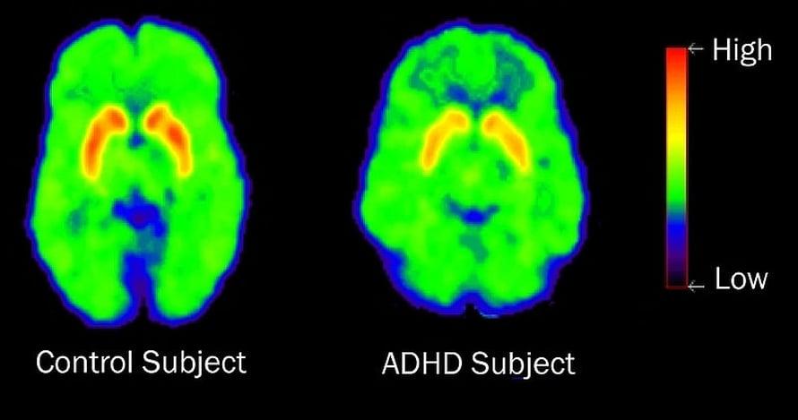 Yhdysvaltalaistutkijoiden PET-kuvissa näkyy, että adhd-häiriöisen aivojen palkkiojärjestelmä työskentelee tavallista tehottomammin.