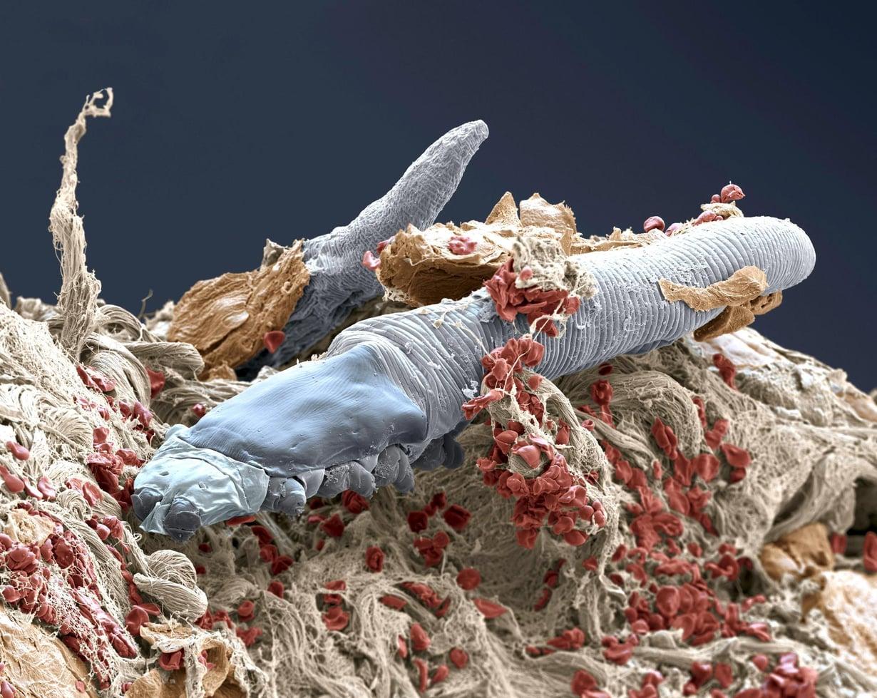 Talipunkki Demodex folliculorum on niin pieni, ettei sitä paljaalla silmällä erota.