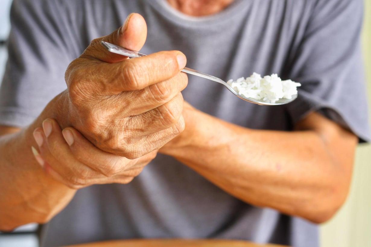 Parkinsonin taudin aiheuttama vapina voi vaatia tukea toiselta kädeltä. Kuva: Shutterstock