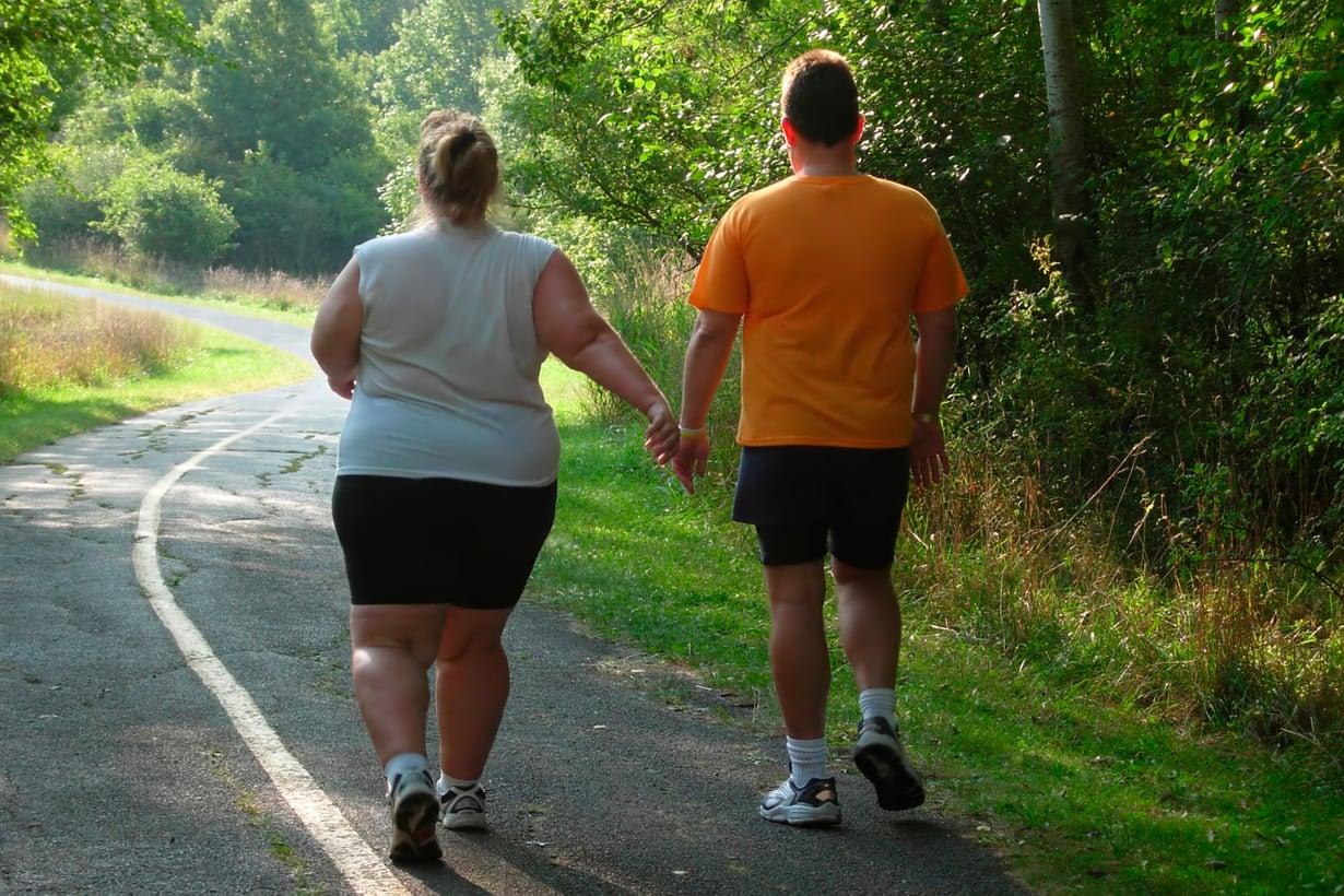 Lihavuus muuttaa myös ihmisaivoja. Syytä etsitään rottakokein. Kuva: Shutterstock