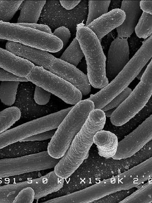 """Escherichia coli -bakteeri elektronimikroskoopin kuvassa. Suolistossa majaansa pitävä kolibakteeri lienee tutkituin ja tunnetuin bakteeri. Kuva: <span class=""""photographer"""">Wikimedia Commons</span>"""