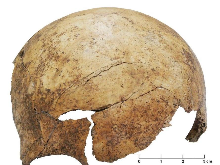 """Tämä ilmeisesti pahoinpitelystä vaurioitunut lapsen kallo on löytynyt myöhäisen kivikauden joukkohaudasta. Kuva: <span class=""""photographer"""">Christian Meyer / University of Basel / Pnas</span>"""