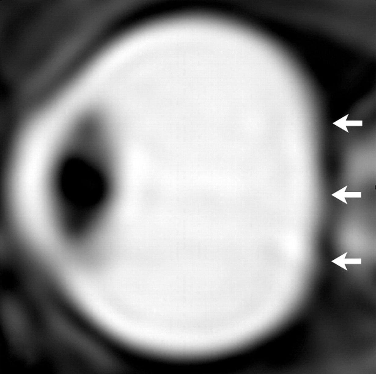 Astronautin silmä pitkän painottomuudessa oleskelun jälkeen. Silmämunan takaseinä on painunut. Kuva: Radiological Society of North America
