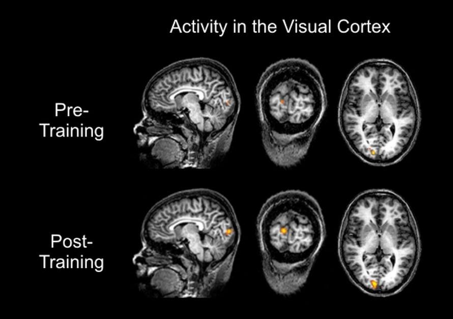 Alemmista kuvista näkyy, miten harjoittelu paransi näköaivokuoren stimulointia.