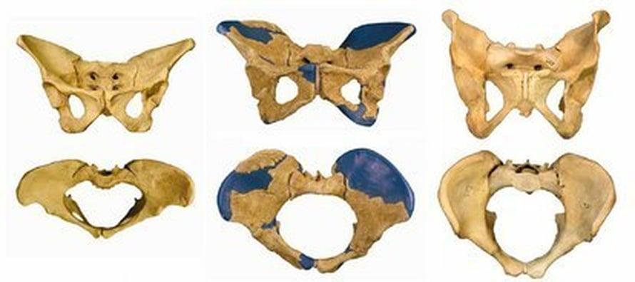 """Vasemmalta oikealle 3,2 miljoonaa vuotta sitten eläneen afrikkalaisen etelänapina Lucyn, naispuolisen pystyihmisen ja nykynaisen lantiot. Kuva: <span class=""""photographer"""">Scott Simpson</span>"""