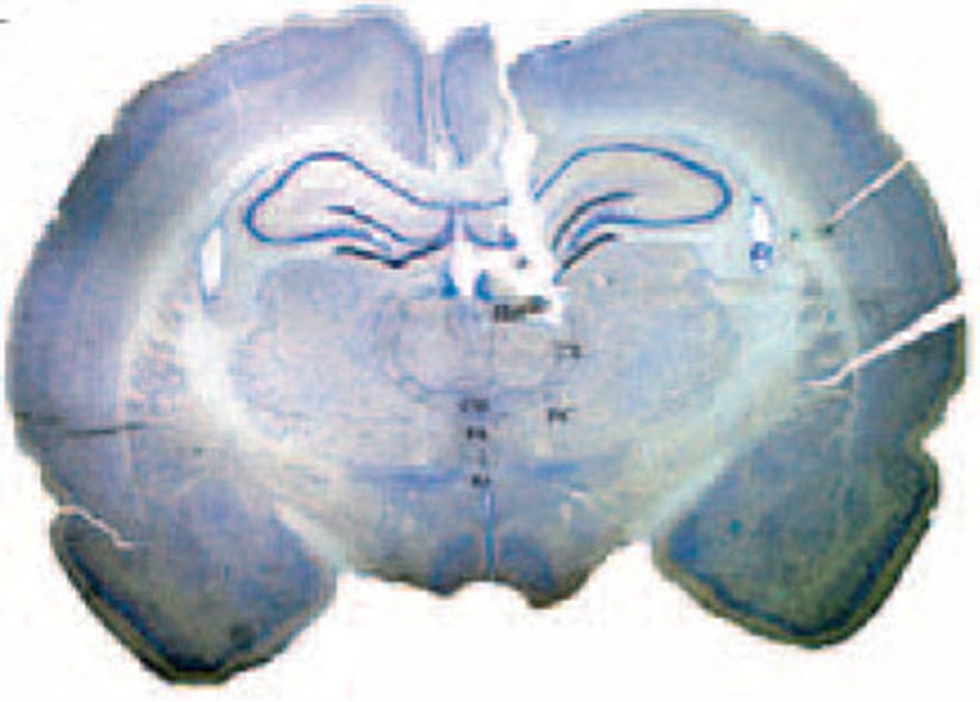 """Väriaine näyttää, että elektrodi on paikallaan rotan aivoissa. Kuva: <span class=""""photographer"""">National Academy of Sciences</span>"""
