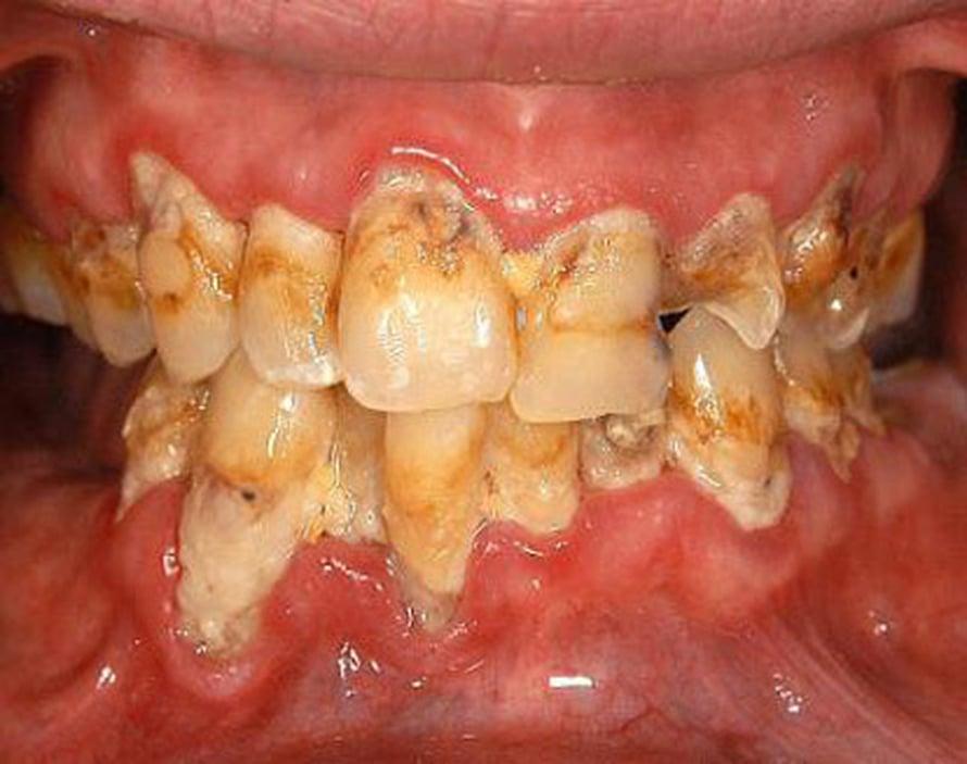 "Metamfetamiinihymy. Kuva: <span class=""photographer"">American Dental Association</span>"