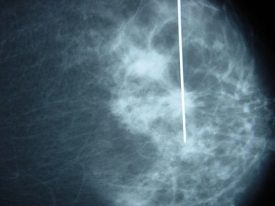Rintakudosnäyte voidaan ottaa stereotaktisesti ohjatulla neulalla, kuten tässä.